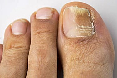 Foot Pedicure Treatment tips - How to fix Stained Nails